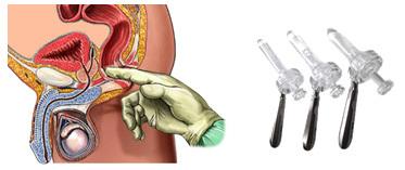 Anoskopie – co to je a kdy se provádí?