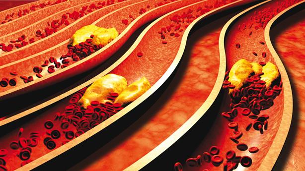 Cholesterol už není strašák – hromadné předepisování léků (statinů), na snížení cholesterolu je katastrofa pro veřejné zdraví