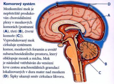 Co je hydrocefalus (nahromadění mozkomíšního moku) – příznaky, příčiny a léčba