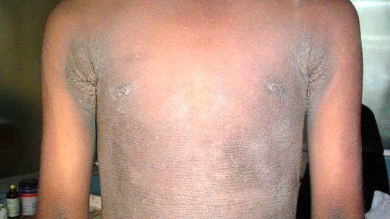Akantóza (acanthosis nigricans) – co je to – příznaky, příčiny a léčba