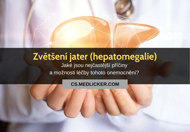 Alkoholická hepatitida – příznaky, příčiny a léčba