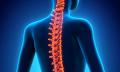Cervikogenní bolest hlavy (přenesená bolest hlavy z oblasti krční páteře) – jak ji řešit?