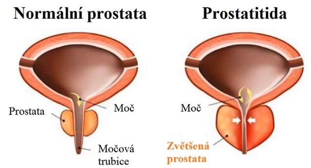Chronická prostatitida neboli chronický zánět prostaty – co je to – příznaky, příčiny a léčba