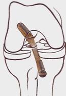 Artroskopie – co je to – kdy a proč se provádí?