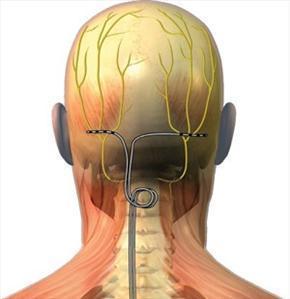 Neuropatická bolest – jak pomáhá neuromodulace (neurostimulační terapie) v léčbě chronické bolesti?