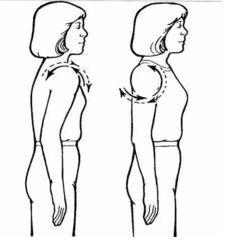 Cviky na uvolnění skřípnutého nervu v krku