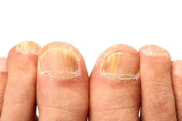 Atletická noha (tinea pedis) – příznaky, příčiny a léčba