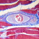 Trichinóza (trichinelóza) – co je to – příznaky, příčiny a léčba