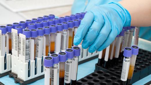 Pompeho choroba – příznaky, příčiny a léčba