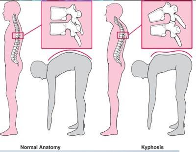 Kyfóza (hyperkyfóza) – mimořádně velké konvexní zakřivení páteře – jaké cviky pomohou?