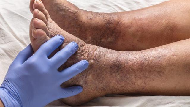 Ischemická choroba dolních končetin – co je to – příčiny, příznaky a léčba
