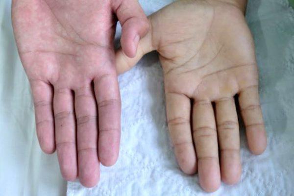 Srpkovitá anémie – příznaky, příčiny a léčba