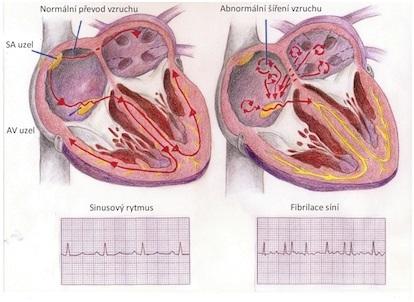 Tachyarytmie (rychlá tepová frekvence) – příznaky, příčiny a léčba