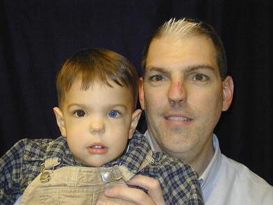 Waardenburgův syndrom – příznaky, příčiny a léčba