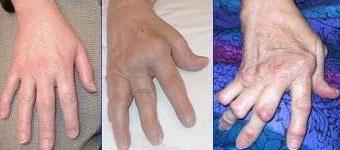 Syndrom (deformita) labutí šíje – příznaky, příčiny a léčba