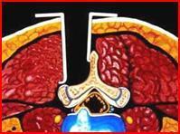 Lumbální spinální stenóza (zúžení páteře, stenóza páteře) – příznaky, příčiny a léčba