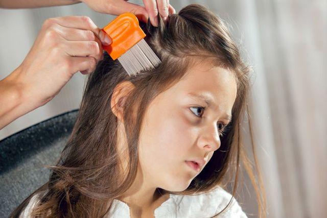 Jablečný ocet na vši ve vlasech – jak ho použít?