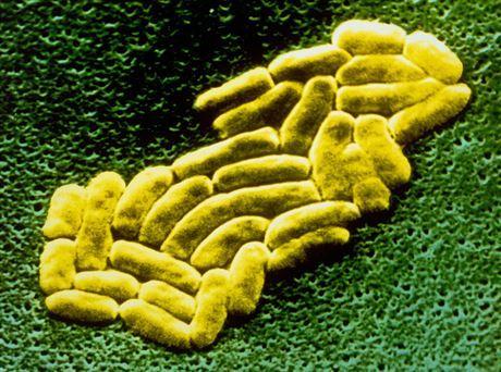 Superbakterie – vědci varují, že bakterie vyvíjejí nové způsoby, jak odolávat antibiotikům