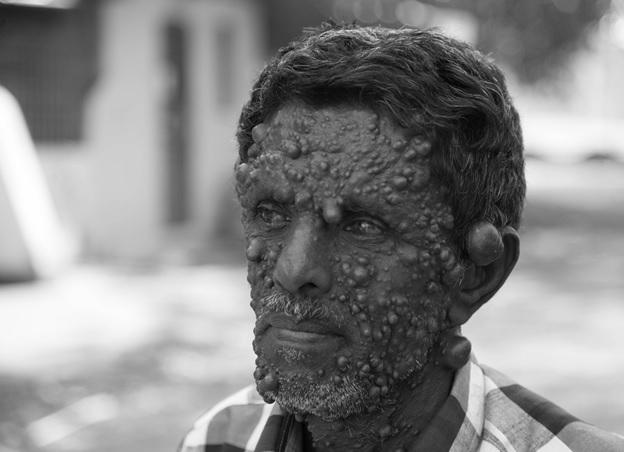 Lepra (malomocenství) – příznaky, příčiny a léčba