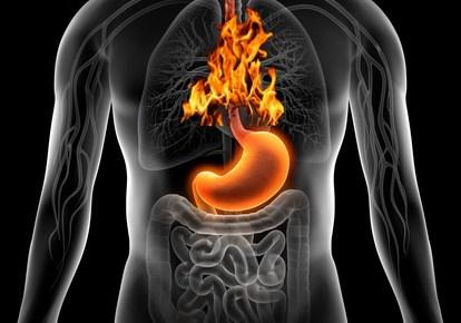 Žaludeční kyselina (žaludeční šťáva)