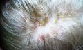 Dyshidrotický ekzém – co je to – příznaky, příčiny a léčba