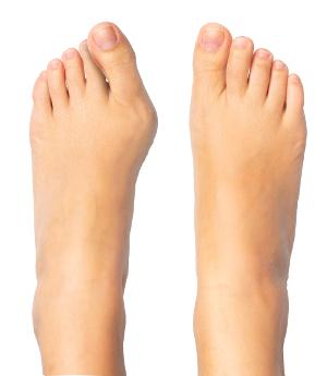Hallux valgus – šikmý (vbočený) palec na noze – konzervativní léčba nebo chirurgický zákrok?