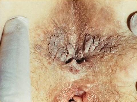 Genitální bradavice – příznaky, příčiny a léčba