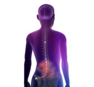 Transkutánní elektrická nervová stimulace (TENS) – co je to a na co ji použít?