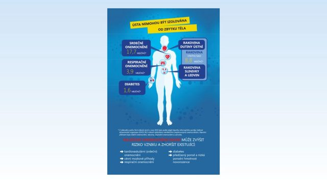 Zánět dásní (gingivitida) – příznaky, příčiny a léčba zánětu