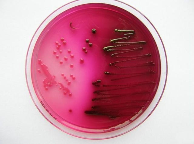WHO: 12bakterií, na které už nefungují antibiotika