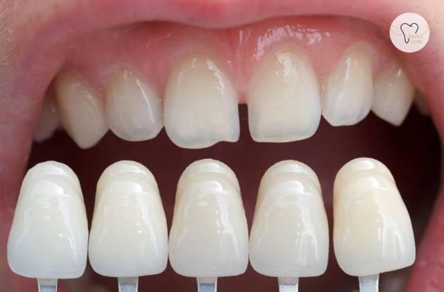 Na křivé či poškozené zuby pomohou fazety