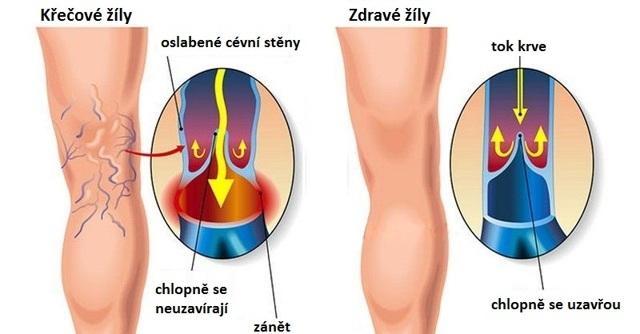 Syndrom těsných kozaček: 3typy lidí skřečovými žilami