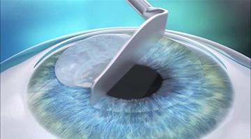 Laserové korekce zraku: na operaci chodí hlavně mladí lidé