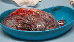 Kanibalismus, pojídání placenty a riziko nákazy
