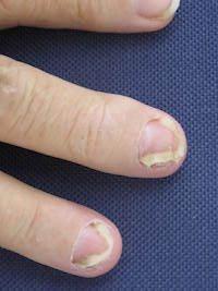 Nadměrná fyzická zátěž může vést ke vzniku artritidy
