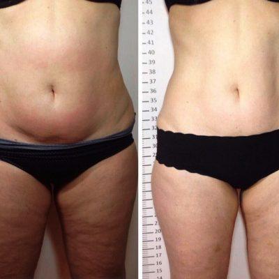 Procedury pro hubnutí břicha ihýždí