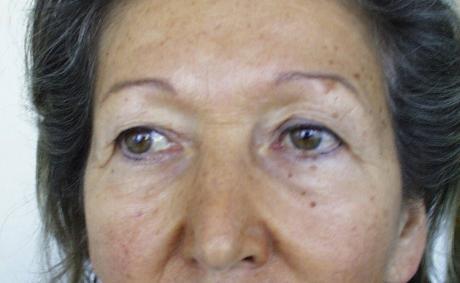 Operace očních víček pohledem chirurga