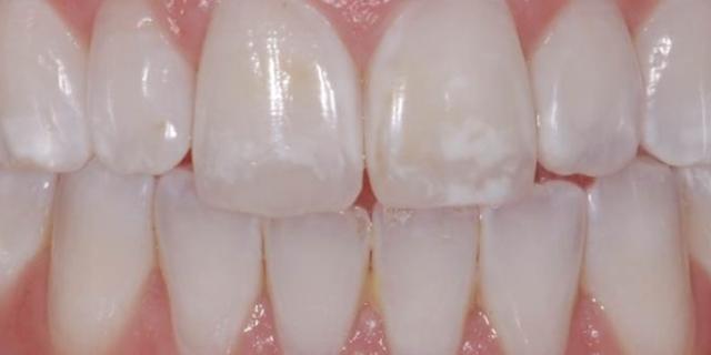 Můžeme si za zubní kazy sami?