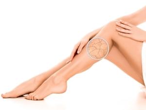 Letní tipy pro péči o pokožku s lupénkou