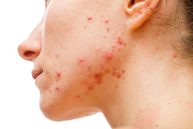 Jak zlepšit akné pomocí stravy
