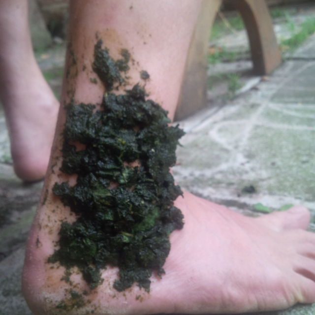 Na zlámané nohy pomůže kostival a na odřeniny olše