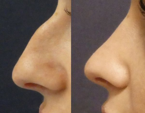 Co obnáší plastika nosu
