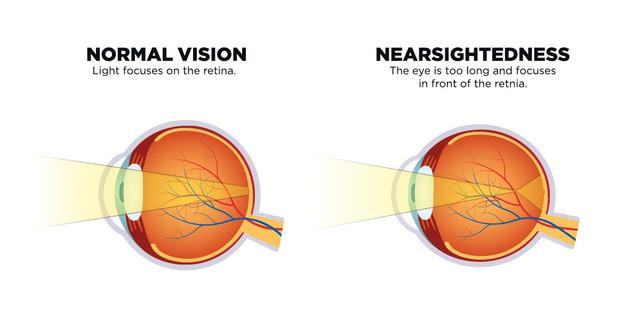 Laserová operace očí: Zkrátkozrakého dalekozraký