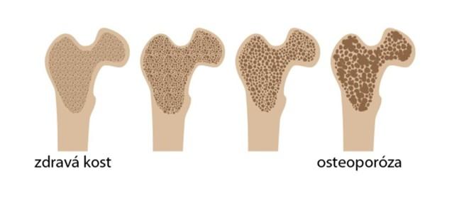 Trpíte častými zlomeninami? Možná máte osteoporózu