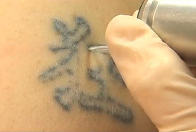 Chcete se zbavit tetování?