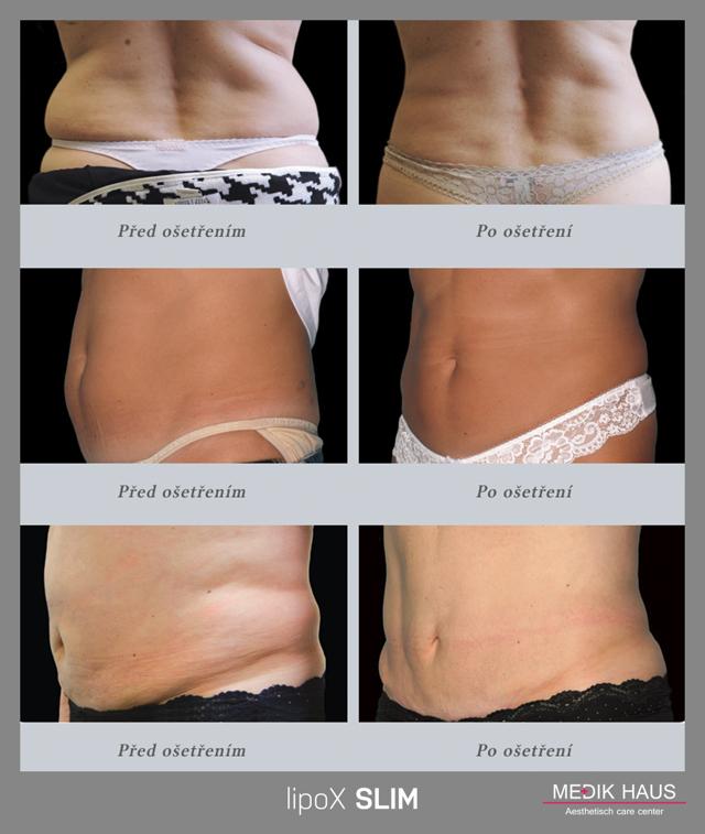 Bezbolestná liposukce se slevou 50 %