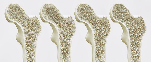 Osteoporóza se projeví bolestí kloubů a zlomeninami. Jaká je prevence?