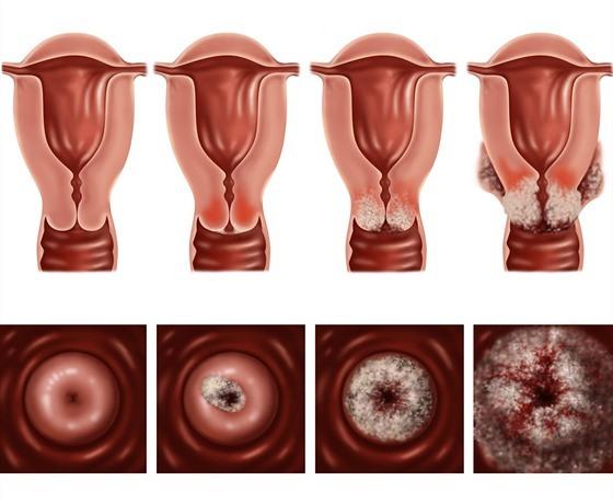 Očkovat nebo neočkovat proti rakovině děložního čípku?