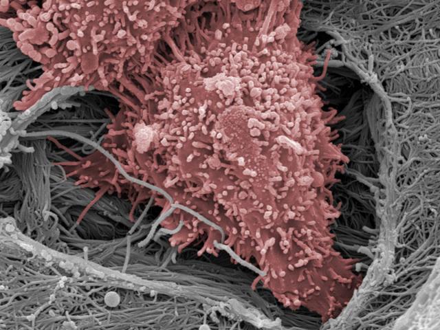 Vědci testují nový způsob léčby rakoviny