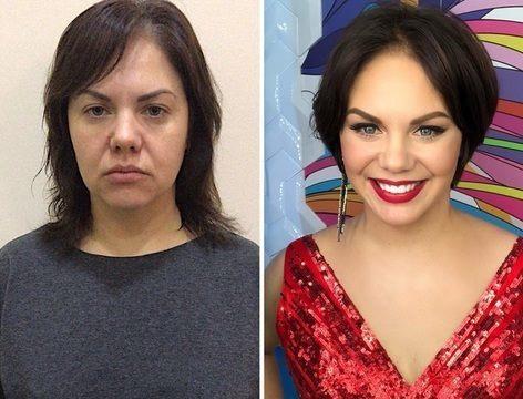 Jak dlouho vydrží face-lift a operace očních víček?Chvíli